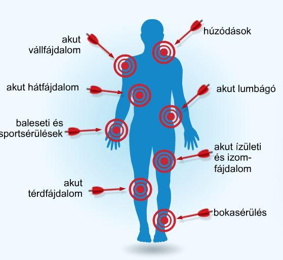izomízületi fájdalom a térdízület külső oldalsó ágának részleges károsodása