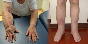 éles fájdalom a combban járás közben fájdalom a könyökízület megnyomásakor