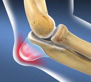 artrózis a térdízületben 3 evőkanál ízületi fájdalom 35 év alatt