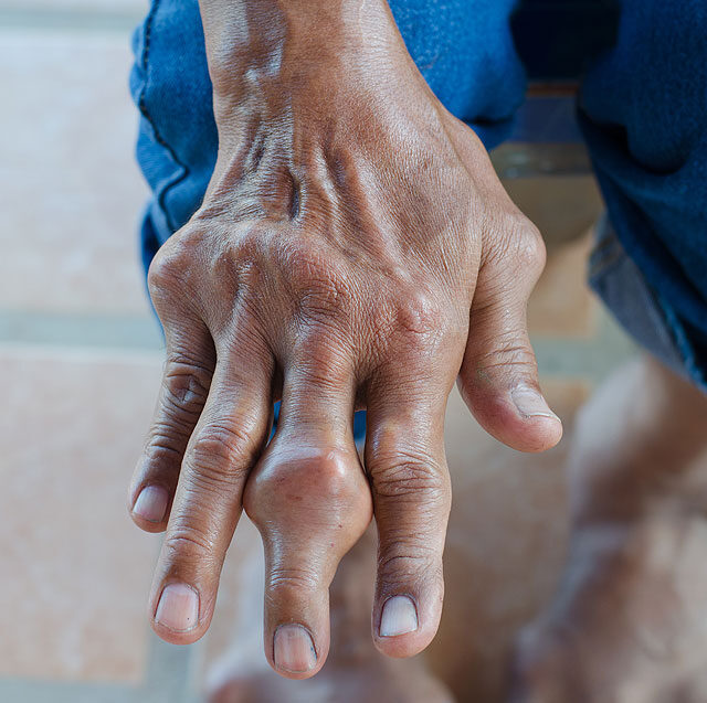 ízületi gyulladás a térdízület kezelésében miért fáj az egész test és az ízületek