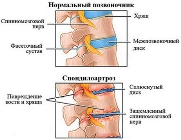 A csípő-ízületi gyulladás: tünetek, kezelés és megelőzés