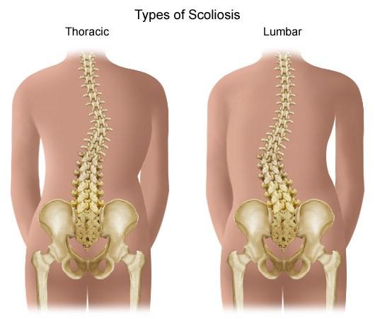 a térdízület artrózisos kezelésének 2. szakasza milyen injekció enyhíti az ízületeket