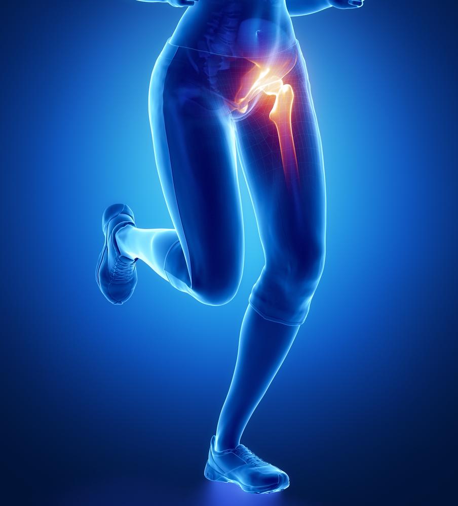 csípő- és ízületi fájdalmak a fájdalom okai a csípőízületek térdén