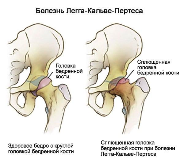 A csípőízület szinovitise - Csukló July