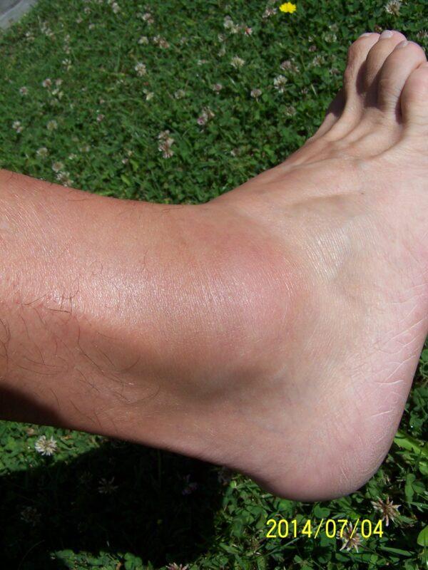 duzzadt bokaízület az egyik lábon kézmasszázs ízületi fájdalommal