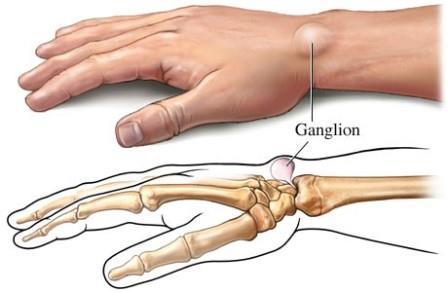 ízületi fájdalom az ujjak hajlításával