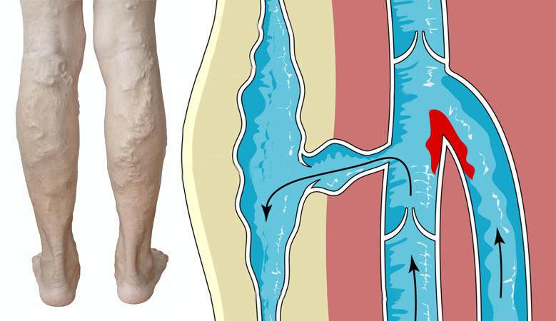 artrózis a térdízületek kezelésében