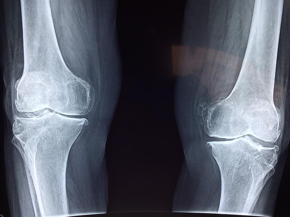 testmozgás, hogy megszabaduljon az ízületi fájdalmaktól fájdalom a láb ízületében kívülről