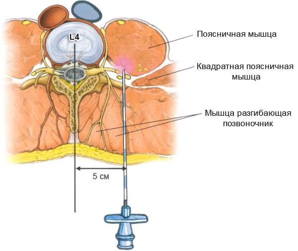 4 típusú injekció az osteochondrosis során (fájdalomcsillapítók, vitaminok stb.) - Arthritis July