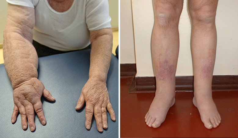 lábödéma ízületi betegségben