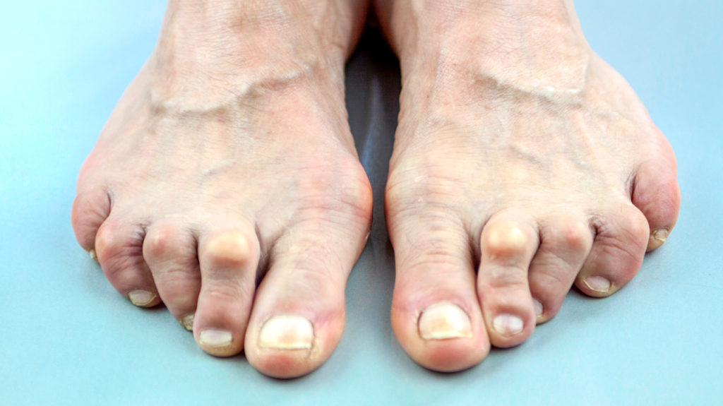 Fájdalom a láb metatarsalis részében - Térd