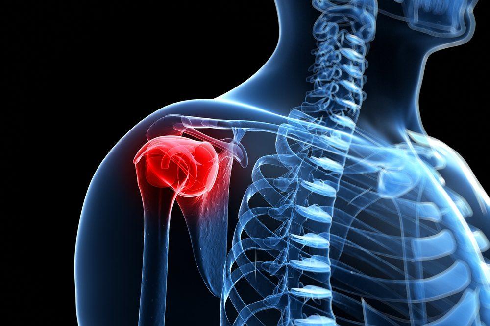 a vállízület kezelése fájdalom esetén
