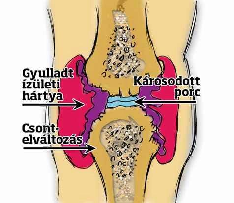 térdízületek ízületi gyulladás esetén ízületi gyulladások enyhítik a fájdalmat