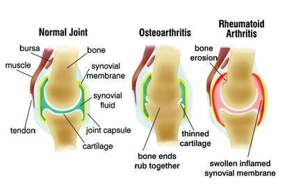 duzzanat az ízületek artrózisával közös thuja