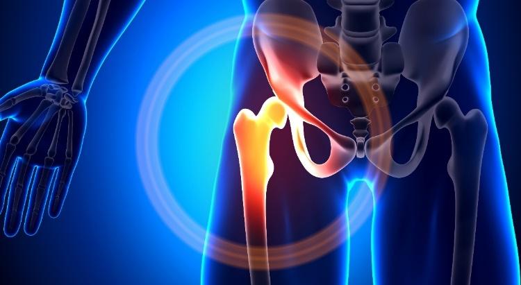 csípőízület ízületi fájdalmainak gyógyszerei
