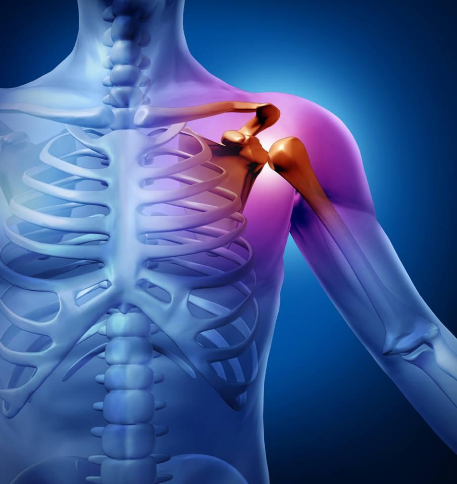 artrózis a vállízületben