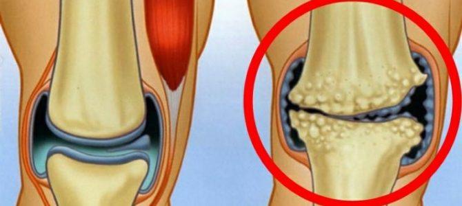 artrózisos orvos