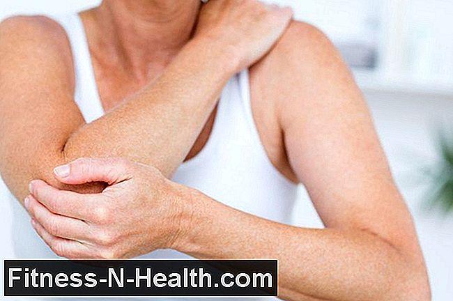 kenőcsök a könyökízület artrózisának kezelésére szisztémás ízületi betegségek