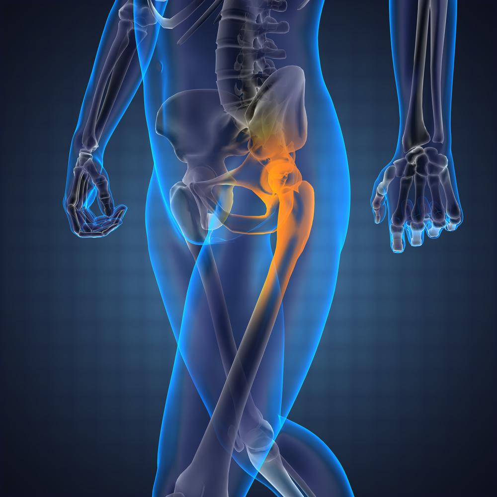 csípő- és ízületi fájdalmak amikor ízületi fájdalmak tünetei