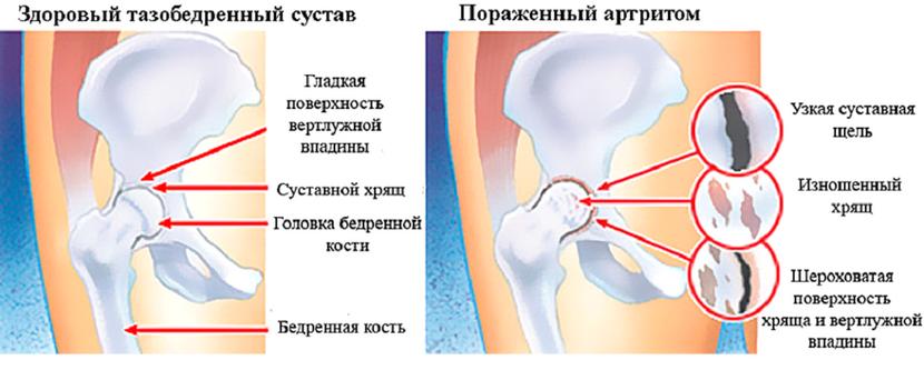 Transzcervikus combcsont törés - Frissítő