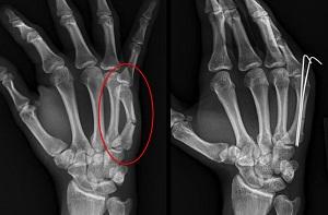 hogyan kezeljük az ujj törött ízületét gyakorlatok ízületi fájdalmak kezelésére