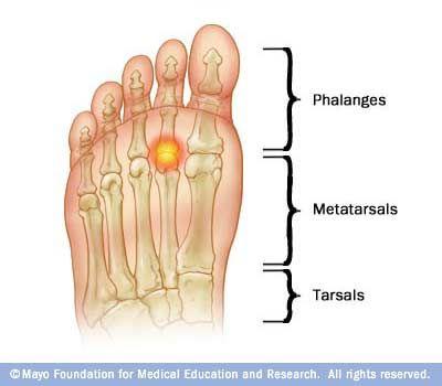 lábujjfertőző ízületi gyulladás