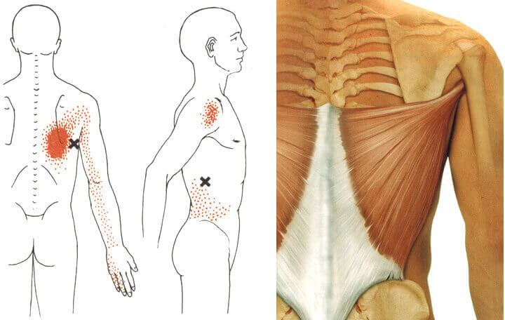 gyógyszerek a vállízület súlyos fájdalmaihoz nyitott csonttörések és ízületi sérülések