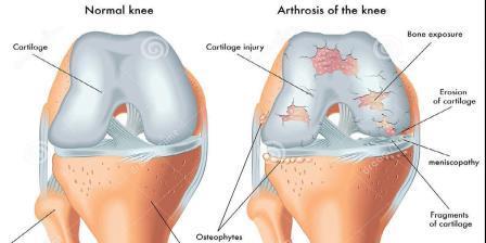 csípő-gonarthrosis tünetei és kezelése