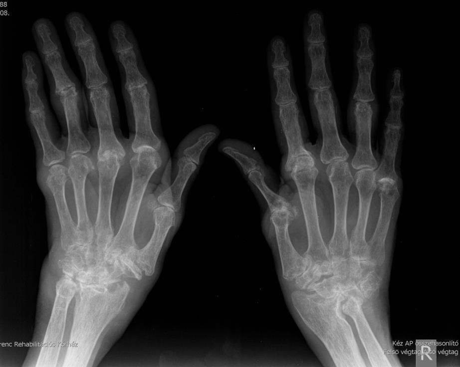 brachialis artrózis hatékony kezelés térdízületi gyulladás kezelése voltarennel