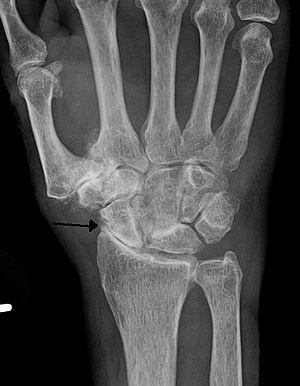 carpal carpal artrosis izületi arthrosis