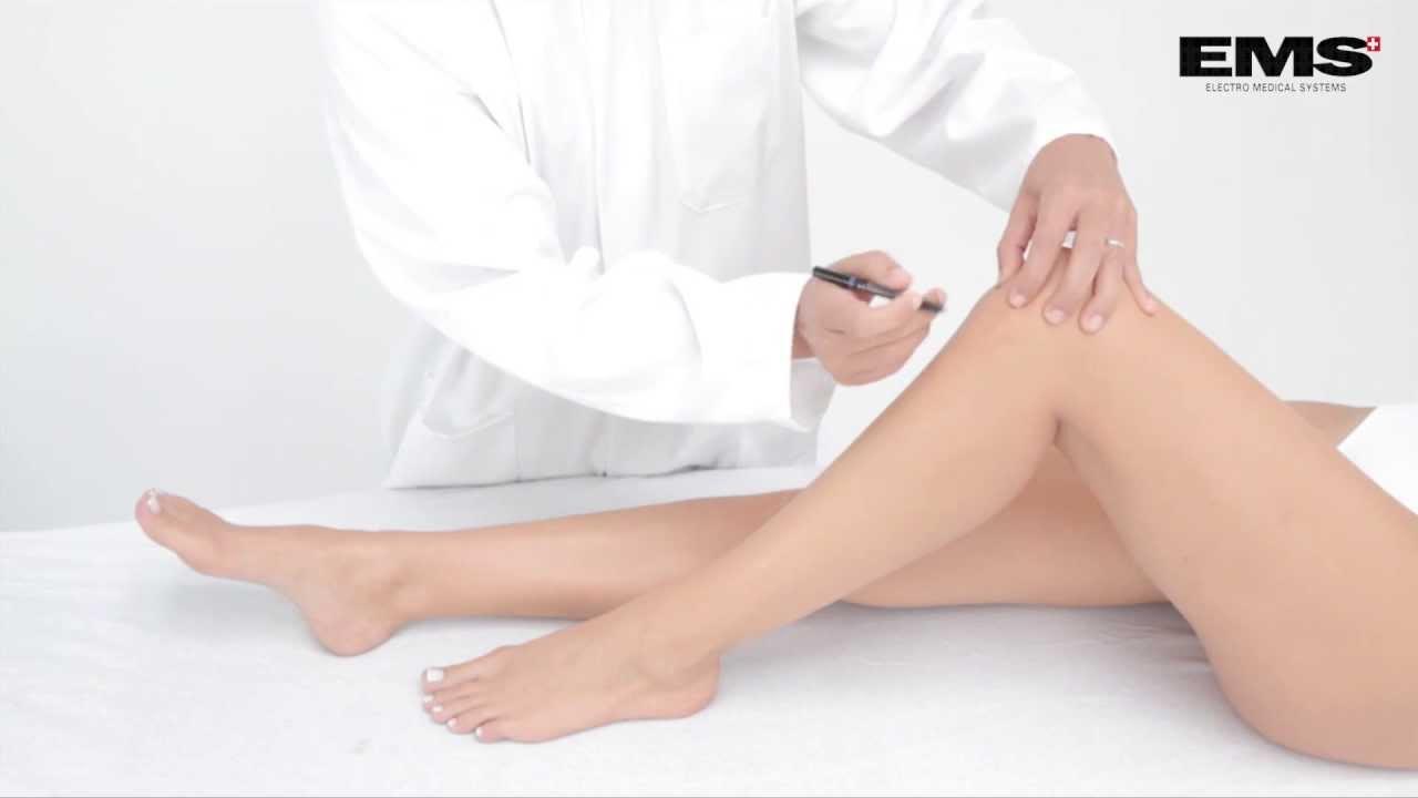hogyan lehet enyhíteni a duzzanat a térdízület bursitisével norbekov artrózis kezelése