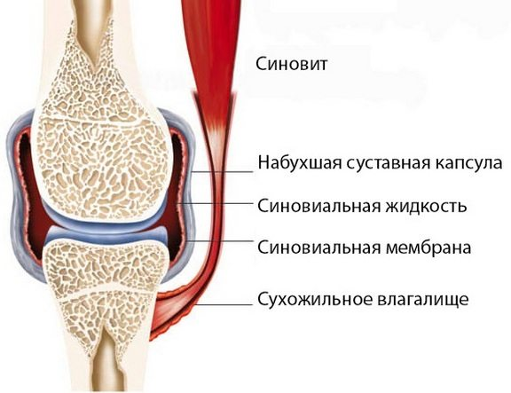 fájdalomcsillapítók térdfájdalmakhoz