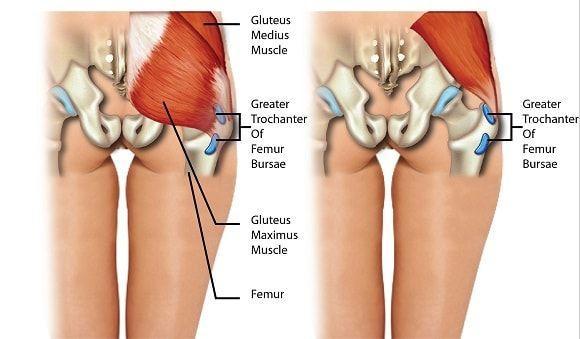 mi a vállízület bursitis kezelése