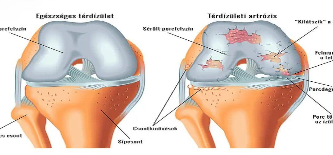hatékony a térd artrózisának kezelésében a könyökízület artrózisa 2 fok