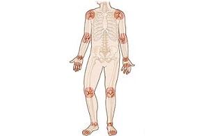 nyaki osteochondrozis gyógyszeres kezelése terd es boka fajdalom