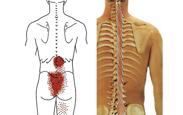 krónikus ízületi kezelés a térdízület 1. fokú ízületi gyulladása okozza