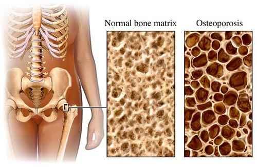 Mákolaj Kúra Csontritkulás megelőzésére és kezelésére