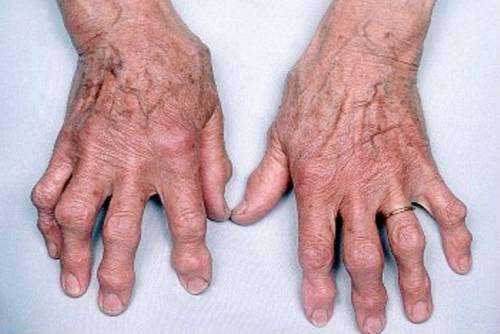 ízületi fájdalom a láb területén
