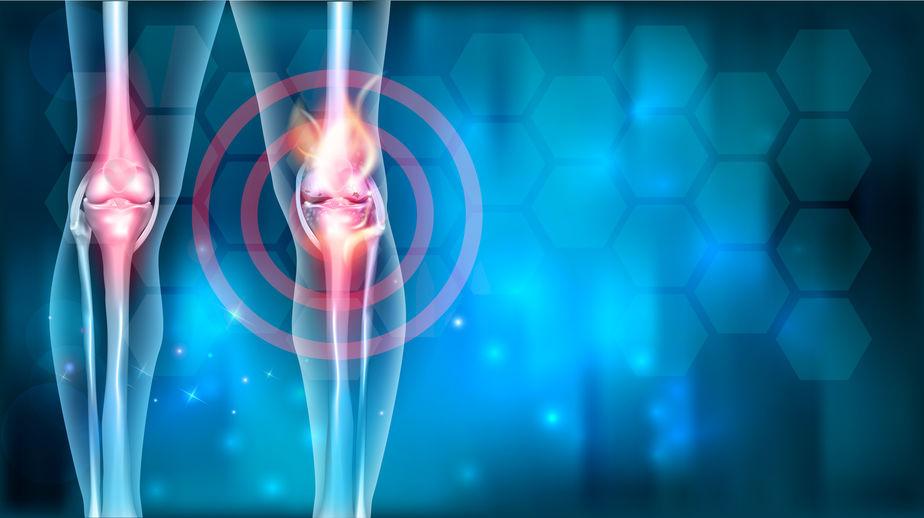 gyulladásgátló kenőcsök gélei az oszteokondrozishoz