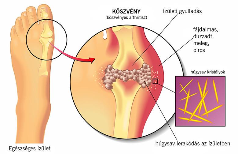 köszvény az ízületben, hogyan lehet enyhíteni a fájdalmat csípő térdízületi kezelése