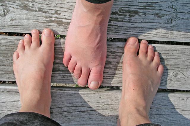 az alsó láb téves ízületeinek kezelése