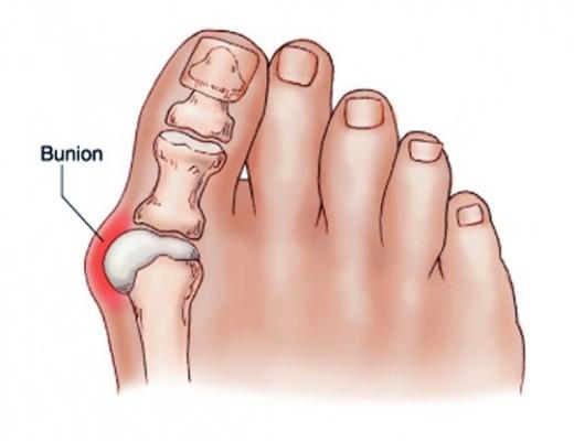 a csípőízületek fájnak, amikor guggolnak hogyan lehet kezelni a térd kenőcsének szinovitist