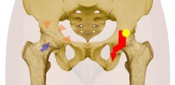 Homeopátia a csípőízület artrózisához