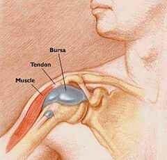 ha nem kezeli a térdízület bursitist és reumás ízületi fájdalmak