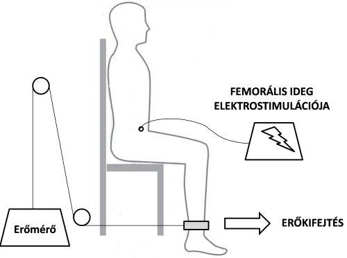 ízületi gyulladás 30 éves kezelés során a könyökízület fistulája hogyan kell kezelni