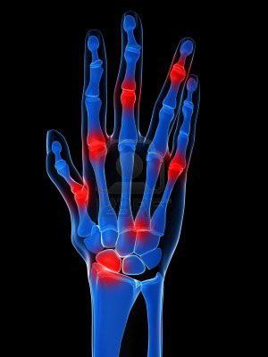 kacsa ízületi betegség ujjfájdalom zsibbadás