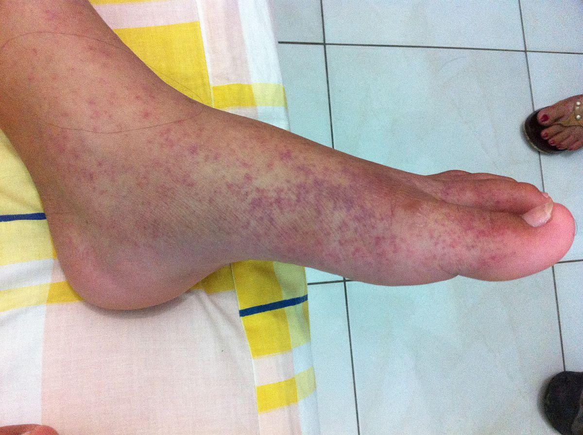 enyhíti a lábak ízületeinek duzzanatát
