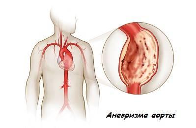 a mellkasi régió osteokondrozisának gyógyszerei artrózis csípőízületi kezelés