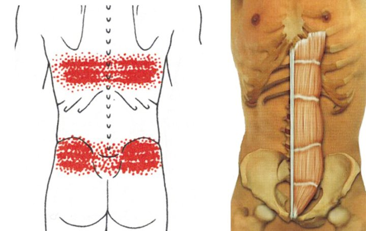 Só lerakódás a váll együttes kezelésében - Myositis -