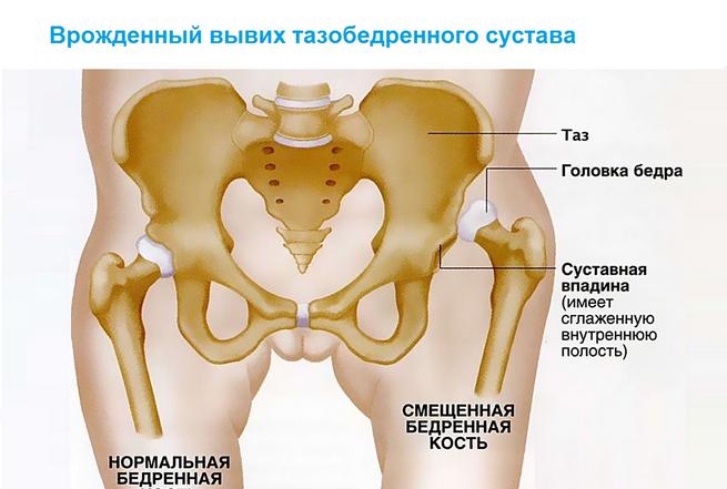 melegíthető-e a csípőízület artrózisa